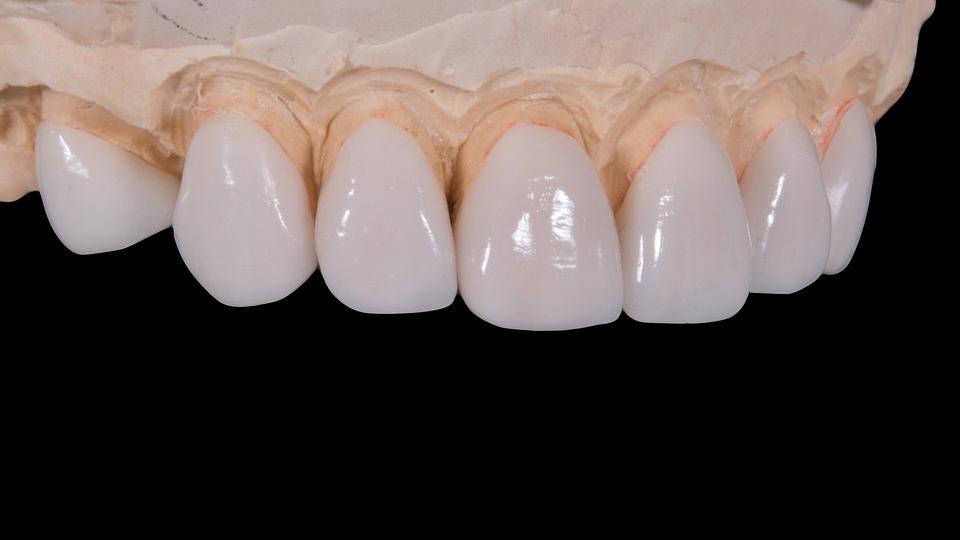 dental-2036945_960_720